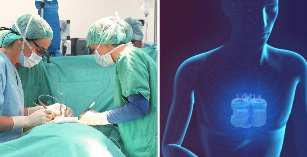 Deras plasthjärta ska rädda livet på 10 svenskar – varje dag